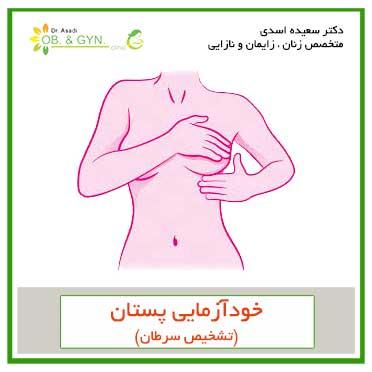 تشخیص سرطان; خود آزمایی پستان