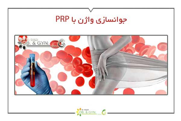 جوانسازی واژن با prp - دکتر سعیده اسدی