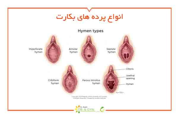 انواع پرده بکارت - دکتر سعیده اسدی