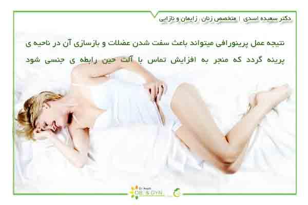 نتیجه تنگ کردن واژن به روش پرینورافی - دکتر سعیده اسدی