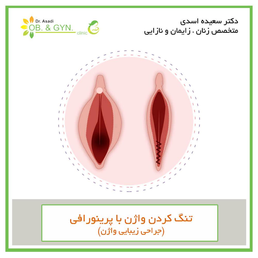 تنگ کردن واژن با پرینورافی - دکتر سعیده اسدی