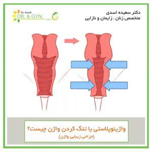 واژینوپلاستی یا تنگ کردن واژن - دکتر سعیده اسدی
