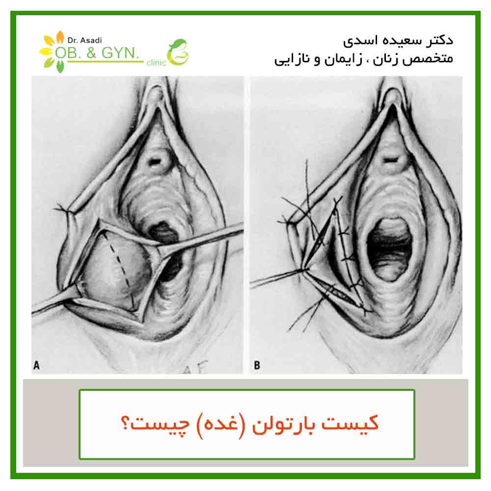 غده بارتولن چیست و راههای درمان- دکتر سعیده اسدی٬ متخصص زنان