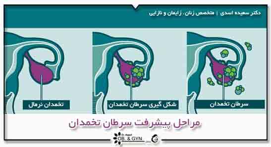 مراحل پیشرفت سرطان تخمدان - دکتر سعیده اسدی٬ متخصص زنان