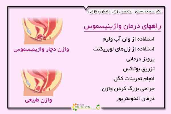 واژینیسموس یا واژینیسم (دخول غیرممکن) علائم و راههای درمان   دکتر سعیده اسدی٬ متخصص زنان