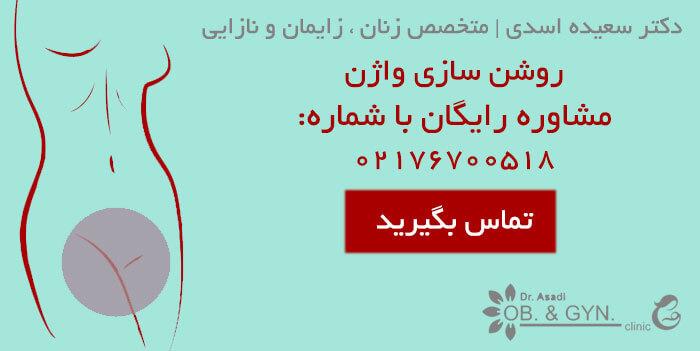 روشن سازی واژن با لیزر-دکتر سعیده اسدی٬ متخصص زنان