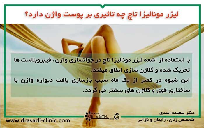 لیزر جوان سازی واژن | دکتر سعیده اسدی٬ متخصص زنان در شرق تهران