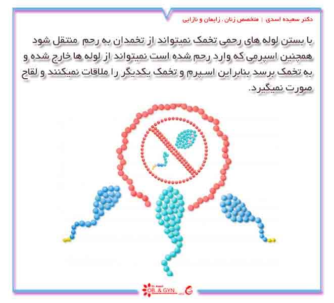 بستن لوله های رحمی | دکتر سعیده اسدی٬ متخصص زنان