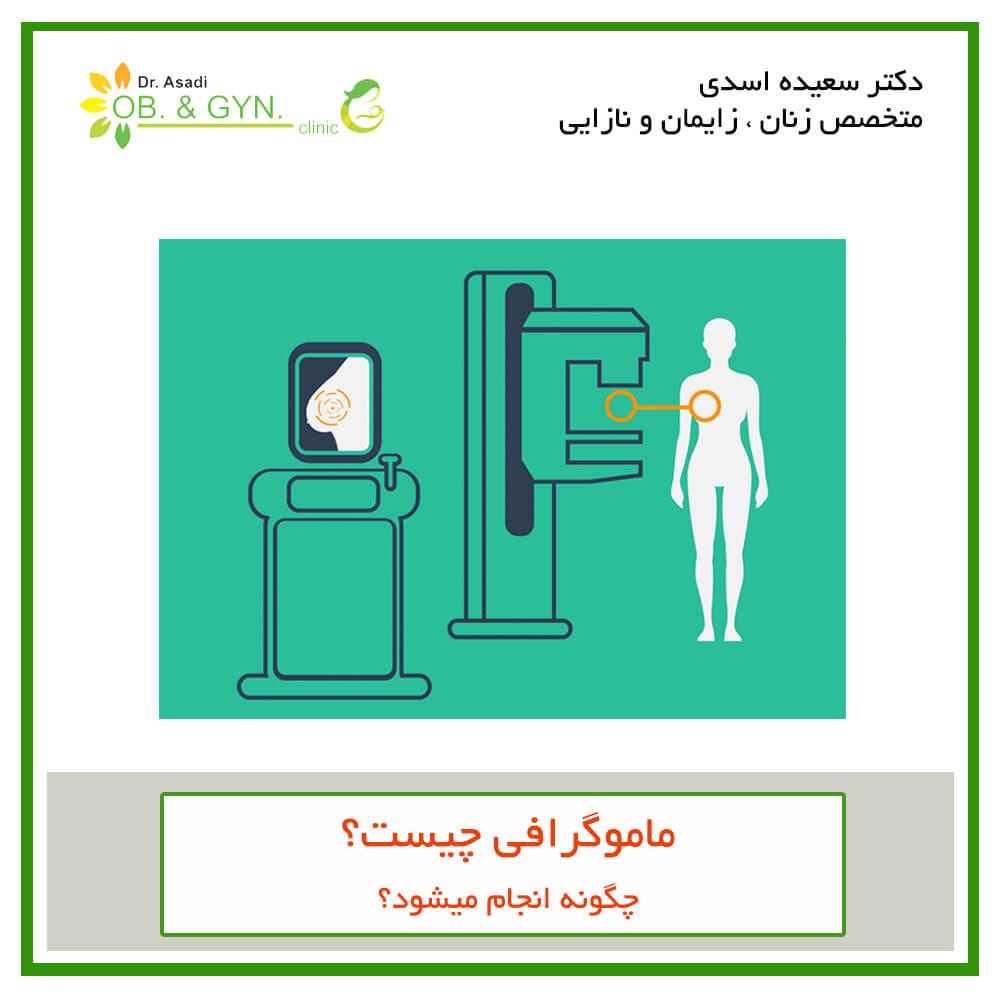 ماموگرافی چیست؟ | دکتر سعیده اسدی٬ متخصص زنان