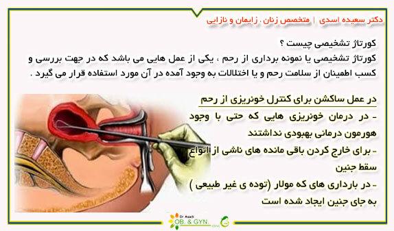 کورتاژ تشخیصی | دکتر سعیده اسدی٬ متخصص زنان