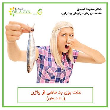 بوی بد ماهی از واژن | دکتر سعیده اسدی٬ متخصص زنان
