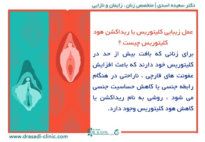 عمل زیبایی کلیتوریس یا ریداکشن کلیتوریس | متخصص زنان در شرق تهران٬ دکتر سعیده اسدی