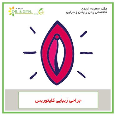 جراحی زیبایی کلیتوریس | دکتر سعیده اسدی٬ متخصص زنان در شرق تهران