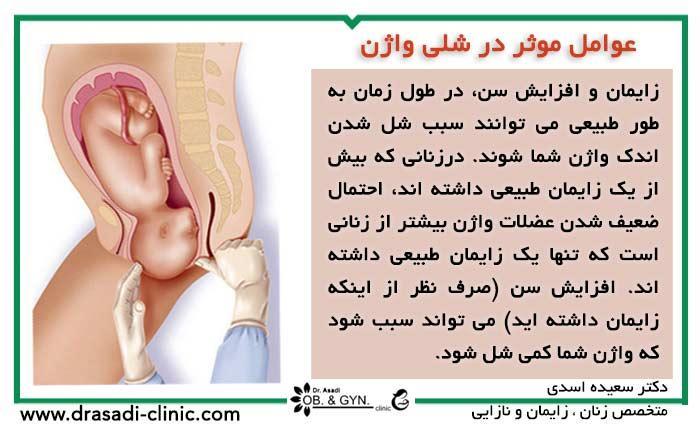 عوامل موثر در شلی واژن | دکتر سعیده اسدی٬ متخصص زنان در شرق تهران