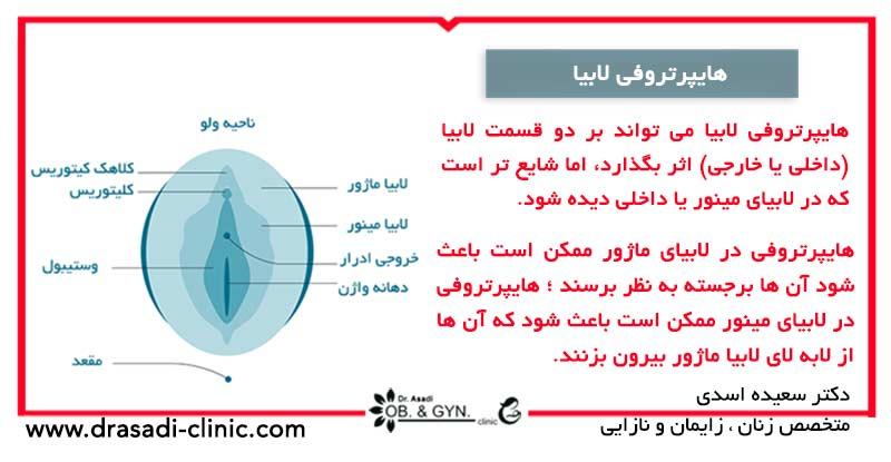 لابیا چیست؟ | دکتر سعیده اسدی٬ متخصص زنان در شرق تهران