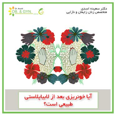 خونریزی بعد از لابیاپلاستی | دکتر سعیده اسدی٬ متخصص زنان در شرق تهران