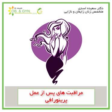 مراقبتهای بعد از عمل پرینورافی | دکتر سعیده اسدی٬ متخصص زنان در شرق تهران