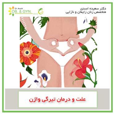 علت تیرگی واژن چیست؟ | دکتر سعیده اسدی٬ متخصص زنان در شرق تهران