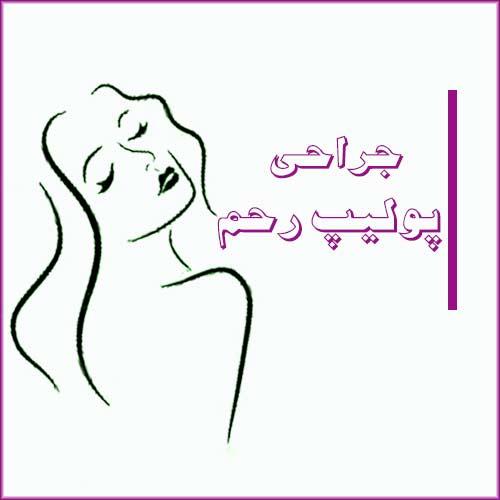 services uterine polyp surgery sh - جراحی درمانی زنان