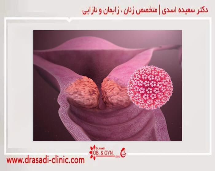 زخم سرویکال پیش سرطانی